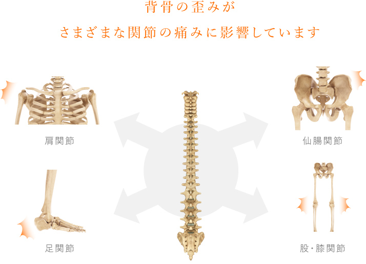 背骨の歪みがさまざまな関節への痛みに影響します