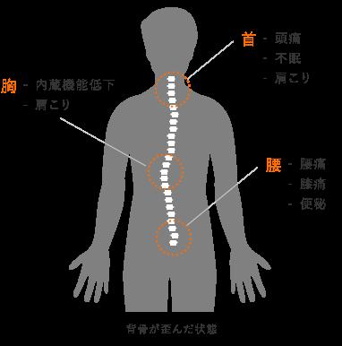 体の中心である「背骨」を見直すことで「慢性痛の解消」、「症状や歪みの再発予防」を行います